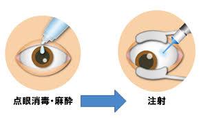 硝子体注射の写真