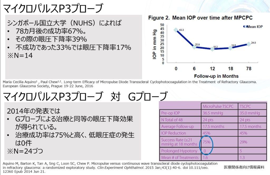 緑内障のレーザーでの治療効果2