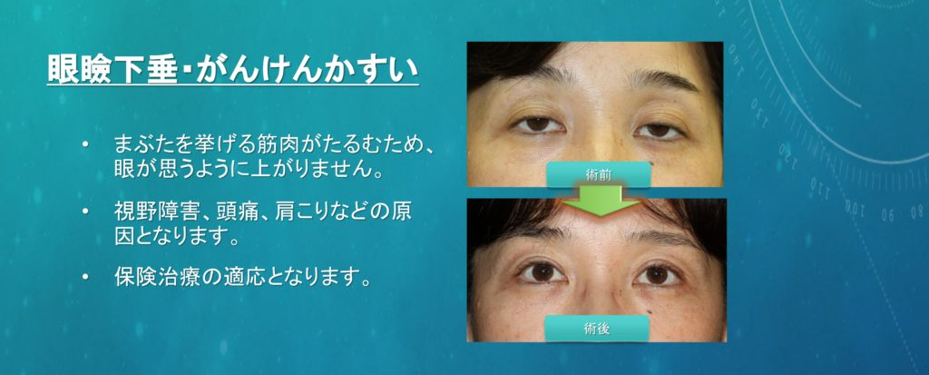眼瞼下垂の術前術後写真