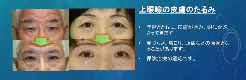 瞼の皮膚のたるみの術前術後