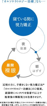 オルソケラトロジー 装用サイクル図