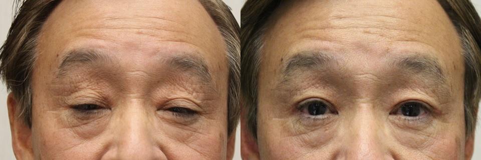 眼瞼下垂 挙筋短縮術前術後