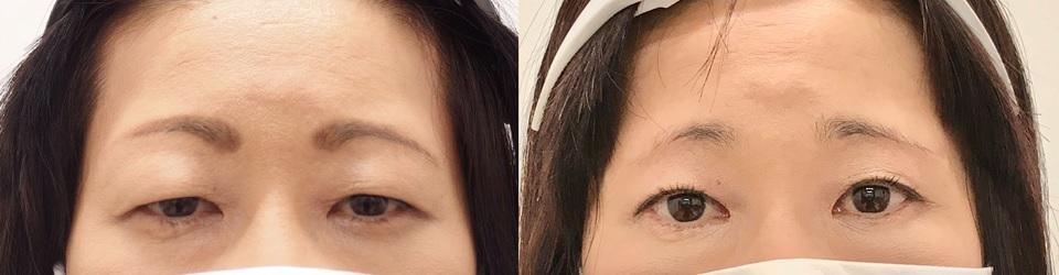 眼瞼下垂術前術後の写真